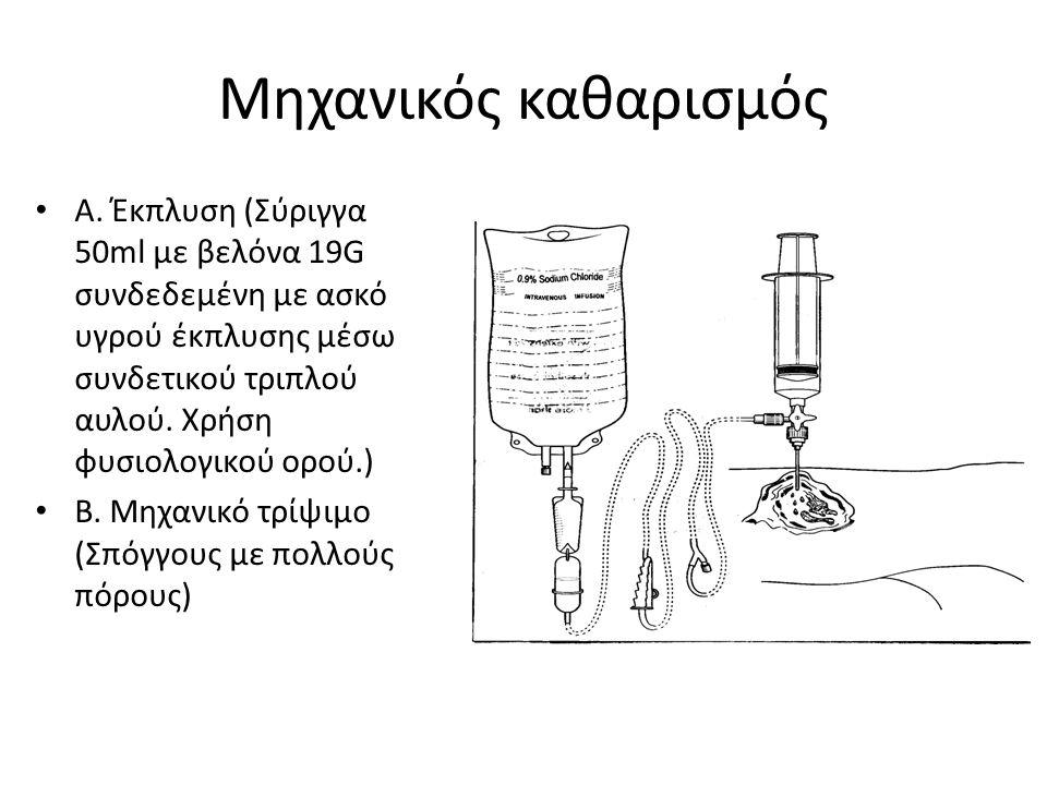 Μηχανικός καθαρισμός Α. Έκπλυση (Σύριγγα 50ml με βελόνα 19G συνδεδεμένη με ασκό υγρού έκπλυσης μέσω συνδετικού τριπλού αυλού. Χρήση φυσιολογικού ορού.
