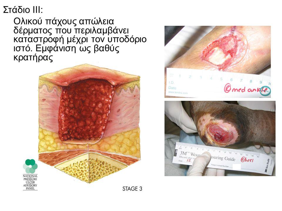 Στάδιο ΙΙΙ: Ολικού πάχους απώλεια δέρματος που περιλαμβάνει καταστροφή μέχρι τον υποδόριο ιστό. Εμφάνιση ως βαθύς κρατήρας