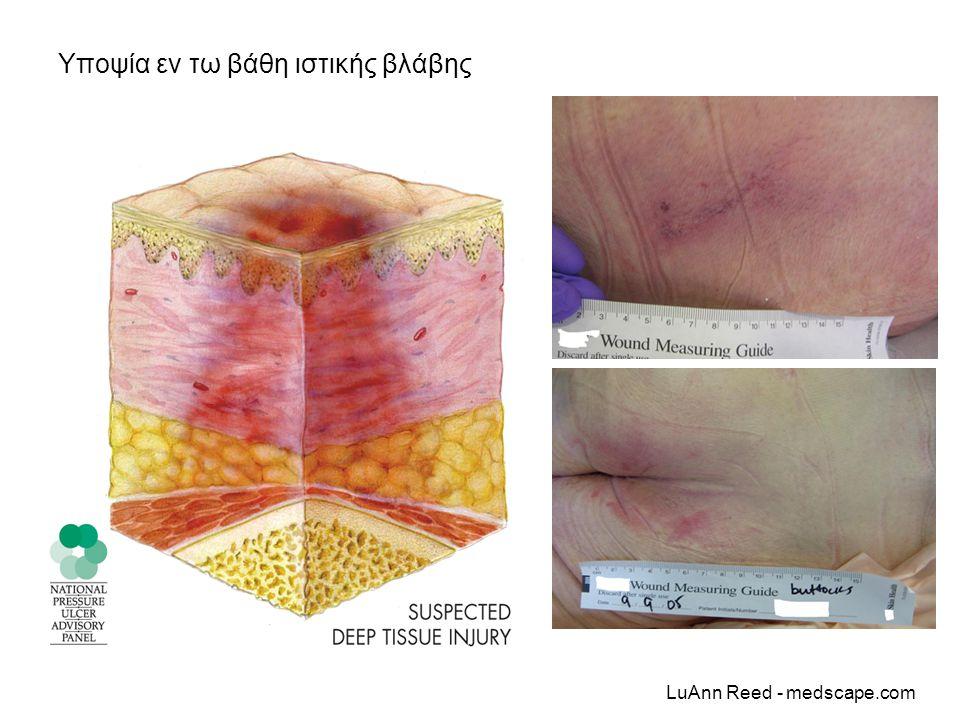 Υποψία εν τω βάθη ιστικής βλάβης LuAnn Reed - medscape.com