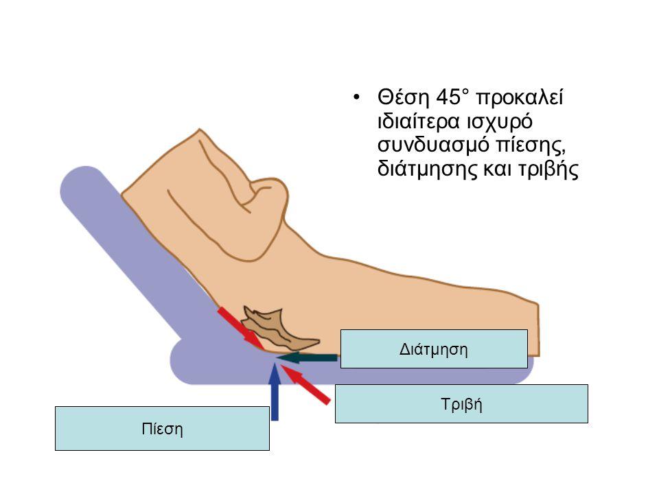 Διάτμηση Πίεση Τριβή Θέση 45° προκαλεί ιδιαίτερα ισχυρό συνδυασμό πίεσης, διάτμησης και τριβής