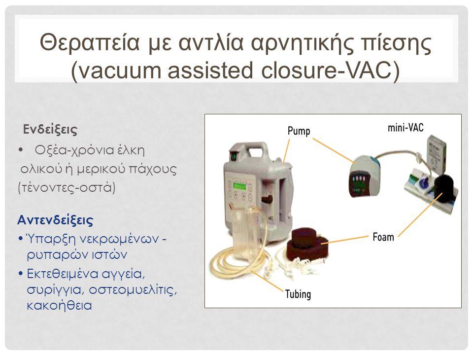 Θεραπεία με αντλία αρνητικής πίεσης (vacuum assisted closure-VAC) Ενδείξεις Οξέα-χρόνια έλκη ολικού ή μερικού πάχους (τένοντες-οστά) Αντενδείξεις Ύπαρξη νεκρωμένων - ρυπαρών ιστών Εκτεθειμένα αγγεία, συρίγγια, οστεομυελίτις, κακοήθεια
