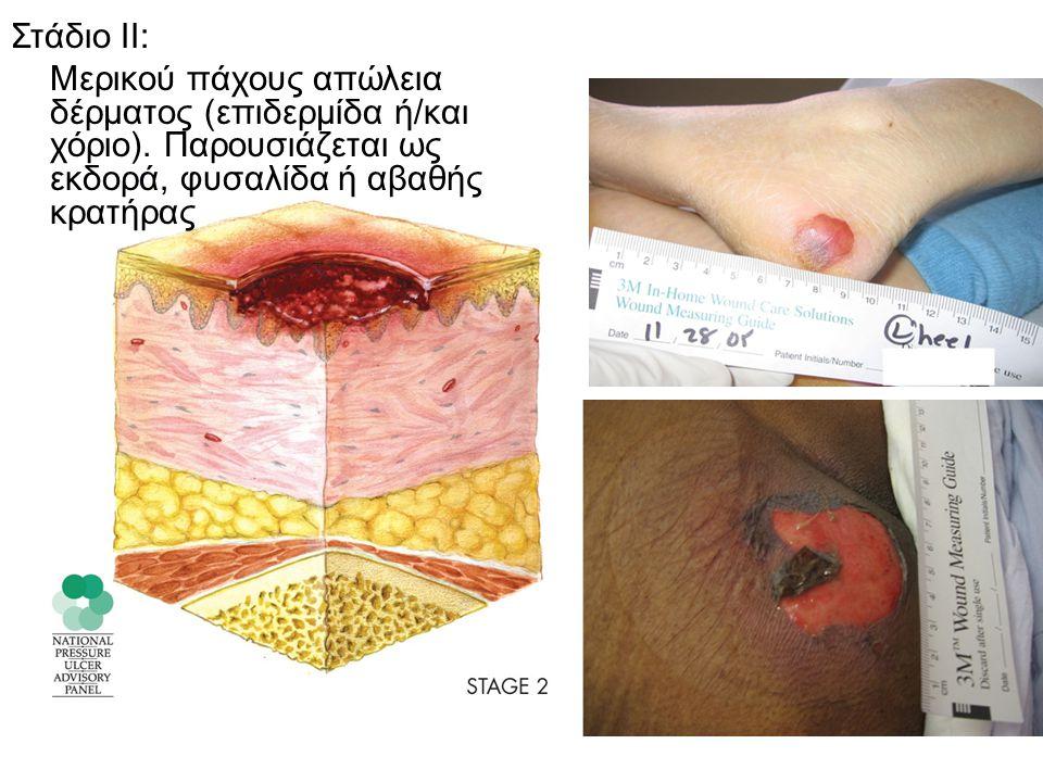 Στάδιο ΙΙΙ: Ολικού πάχους απώλεια δέρματος που περιλαμβάνει καταστροφή μέχρι τον υποδόριο ιστό.