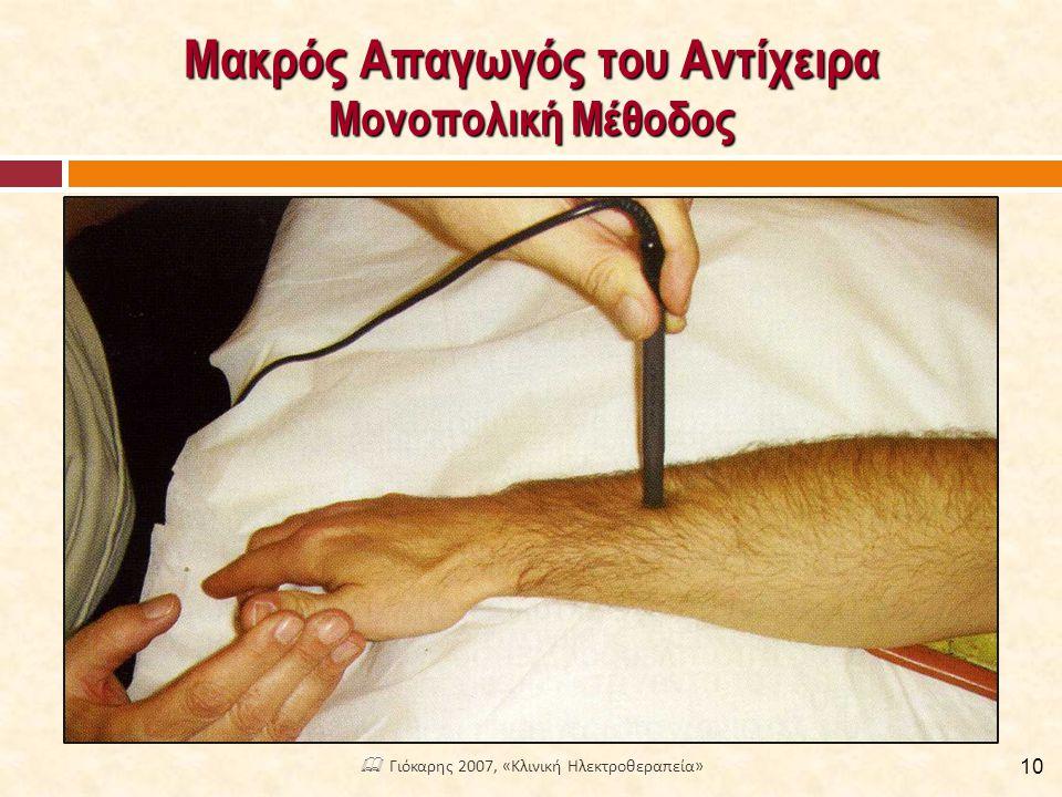 Μακρός Απαγωγός του Αντίχειρα Μονοπολική Μέθοδος 10  Γιόκαρης 2007, «Κλινική Ηλεκτροθεραπεία»