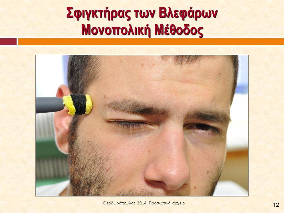 Σφιγκτήρας των Βλεφάρων Μονοπολική Μέθοδος 12 Θεοδωρόπουλος 2014, Προσωπικό αρχείο