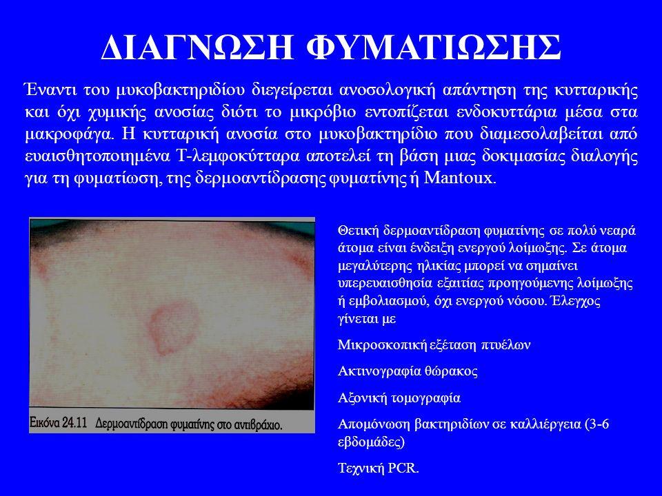 ΔΙΑΓΝΩΣΗ ΦΥΜΑΤΙΩΣΗΣ Έναντι του μυκοβακτηριδίου διεγείρεται ανοσολογική απάντηση της κυτταρικής και όχι χυμικής ανοσίας διότι το μικρόβιο εντοπίζεται ε