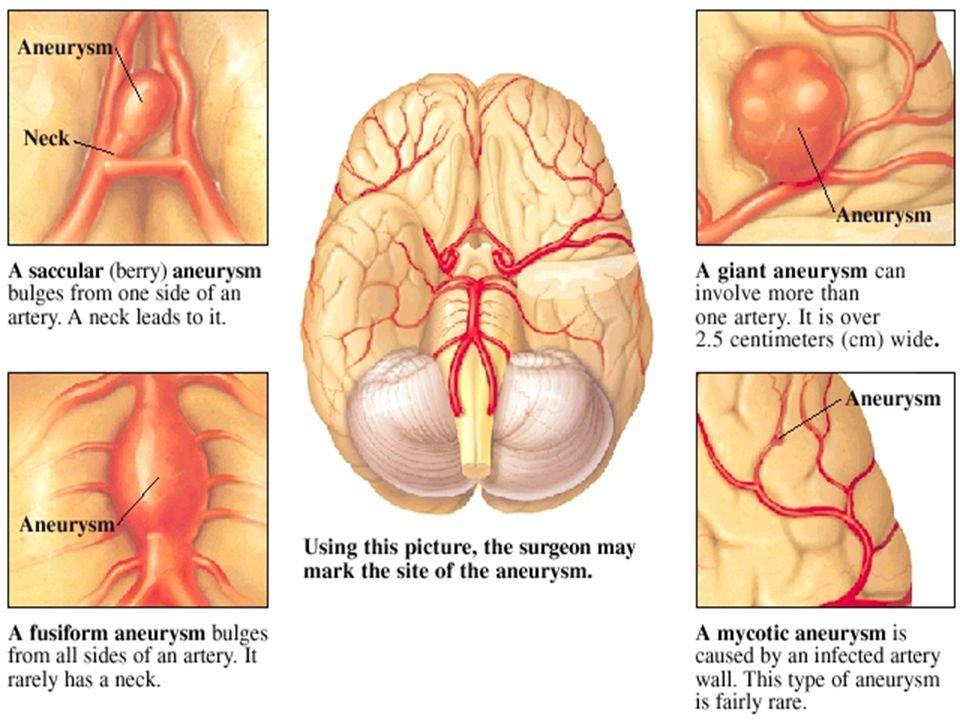 Ενδοεγκεφαλική αιμορραγία: Κακώσεις και ρήξεις των αγγείων μέσα στον εγκεφαλικό ιστό Βαριά κλινική εικόνα με εστιακή σημειολογία, διαταραχές στο επίπεδο συνείδησης, διαταραχές στην αναπνοή και δημιουργία υδροκέφαλου
