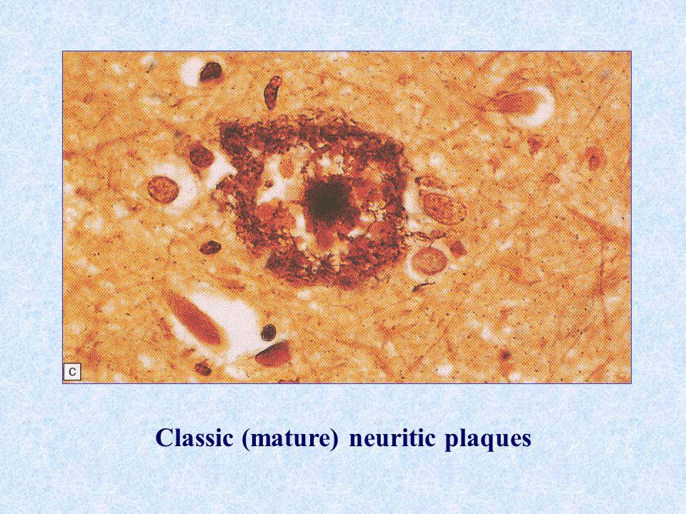 Classic (mature) neuritic plaques