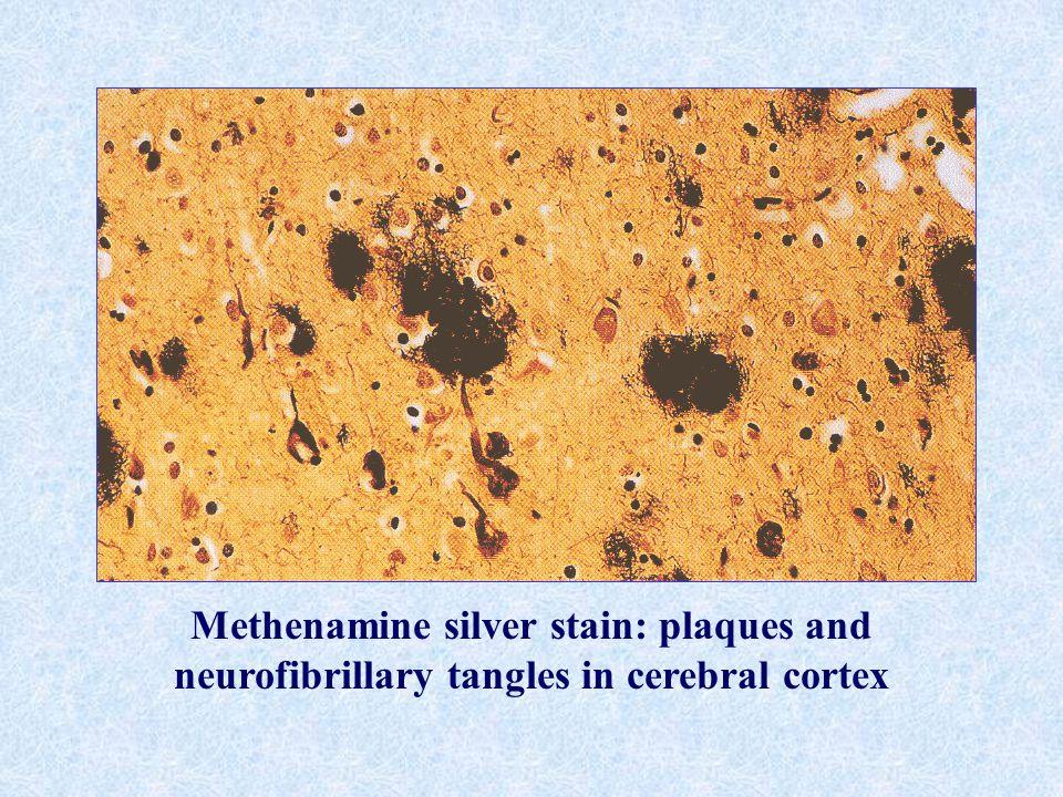 Methenamine silver stain: plaques and neurofibrillary tangles in cerebral cortex