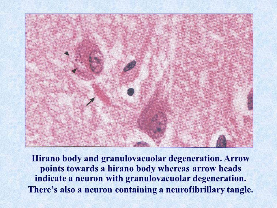 Hirano body and granulovacuolar degeneration. Arrow points towards a hirano body whereas arrow heads indicate a neuron with granulovacuolar degenerati