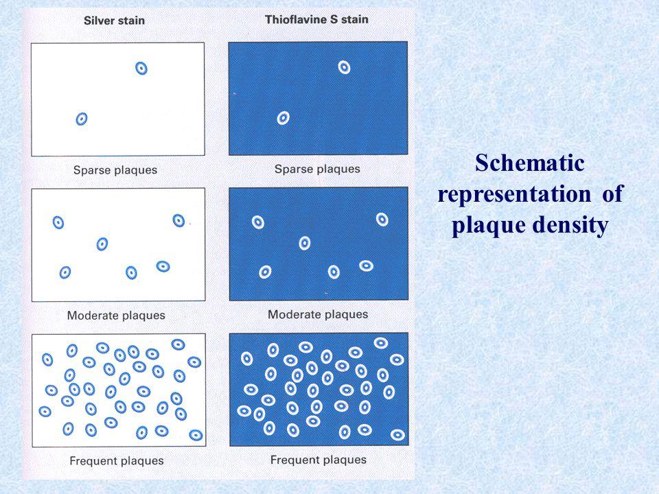 Schematic representation of plaque density