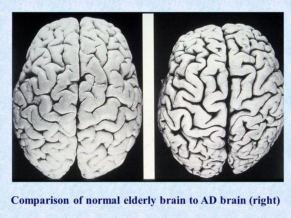 Comparison of normal elderly brain to AD brain (right)