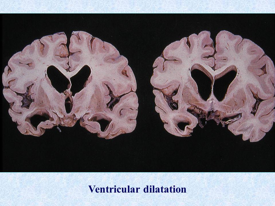 Ventricular dilatation