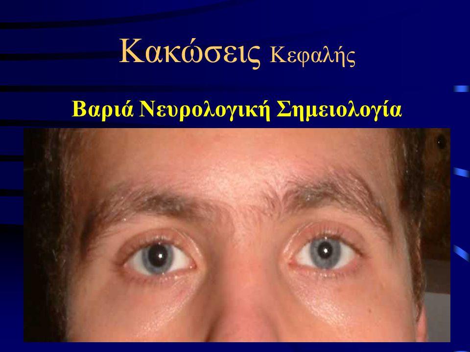 Κακώσεις Κεφαλής Βαριά Νευρολογική Σημειολογία