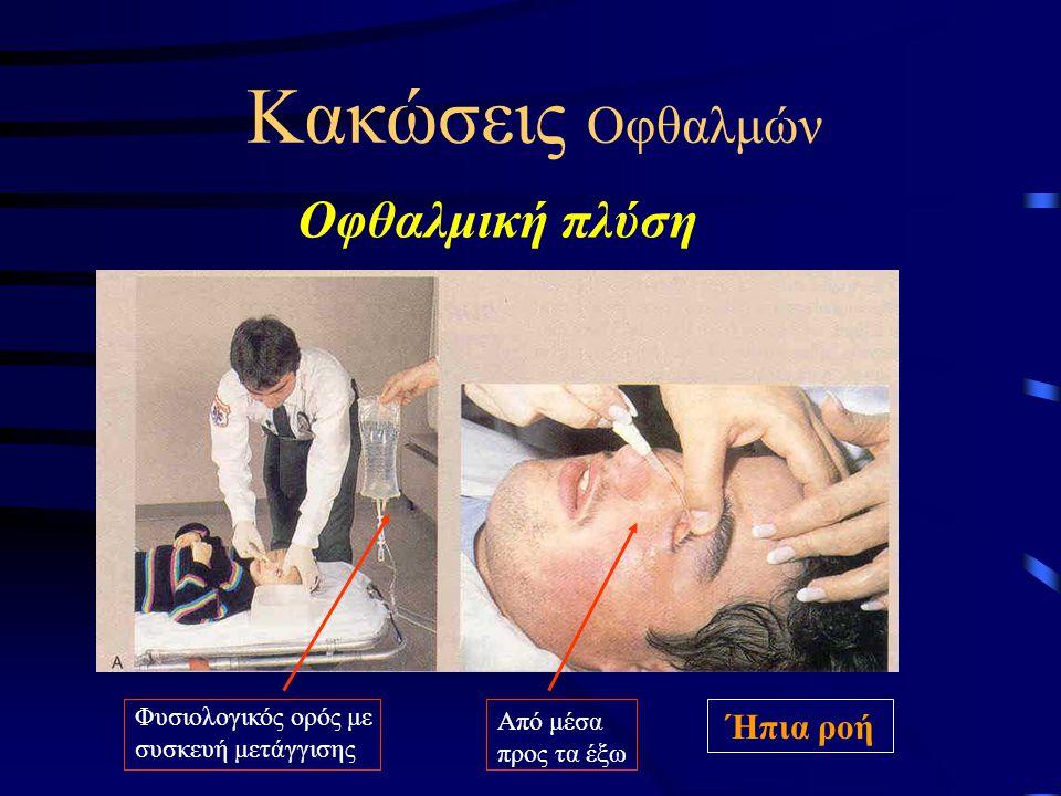 Κακώσεις Οφθαλμών Οφθαλμική πλύση Φυσιολογικός ορός με συσκευή μετάγγισης Από μέσα προς τα έξω Ήπια ροή