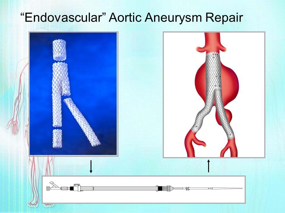 """""""Endovascular"""" Aortic Aneurysm Repair"""
