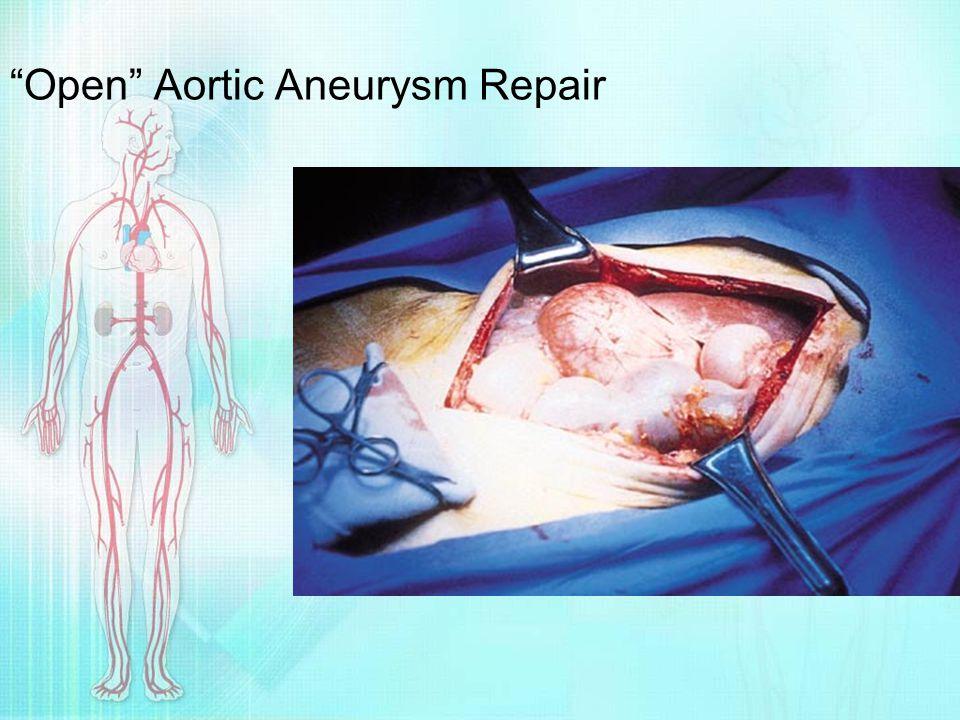 """""""Open"""" Aortic Aneurysm Repair"""