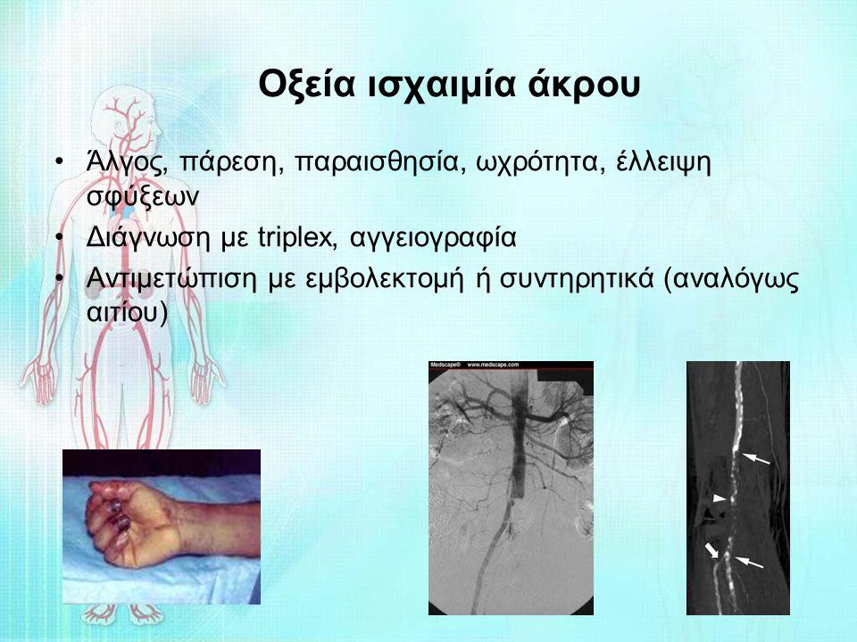 Οξεία ισχαιμία άκρου Άλγος, πάρεση, παραισθησία, ωχρότητα, έλλειψη σφύξεων Διάγνωση με triplex, αγγειογραφία Αντιμετώπιση με εμβολεκτομή ή συντηρητικά