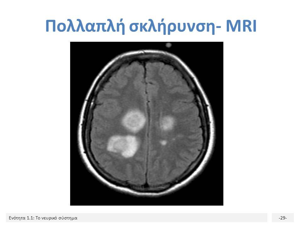 Ενότητα 1.1: Το νευρικό σύστημα-28- Πολλαπλή σκλήρυνση (κατά πλάκας σκλήρυνση) Αυτοάνοση απομυελινωτική νόσος. Οφείλεται στην καταστροφή της μυελίνης