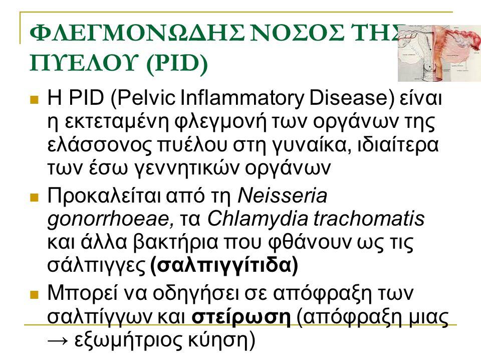 ΦΛΕΓΜΟΝΩΔΗΣ ΝΟΣΟΣ ΤΗΣ ΠΥΕΛΟΥ (PID) Η PID (Pelvic Inflammatory Disease) είναι η εκτεταμένη φλεγμονή των οργάνων της ελάσσονος πυέλου στη γυναίκα, ιδιαί