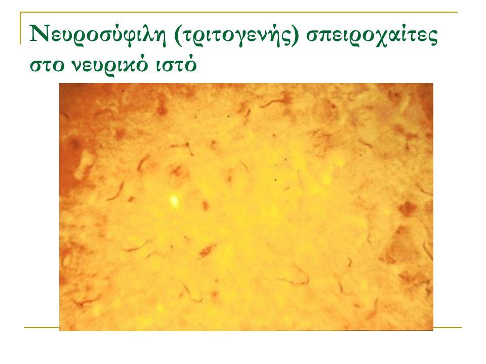 Νευροσύφιλη (τριτογενής) σπειροχαίτες στο νευρικό ιστό