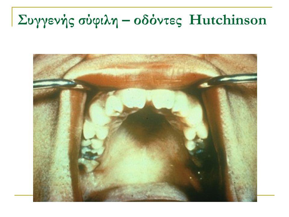 Συγγενής σύφιλη – οδόντες Hutchinson