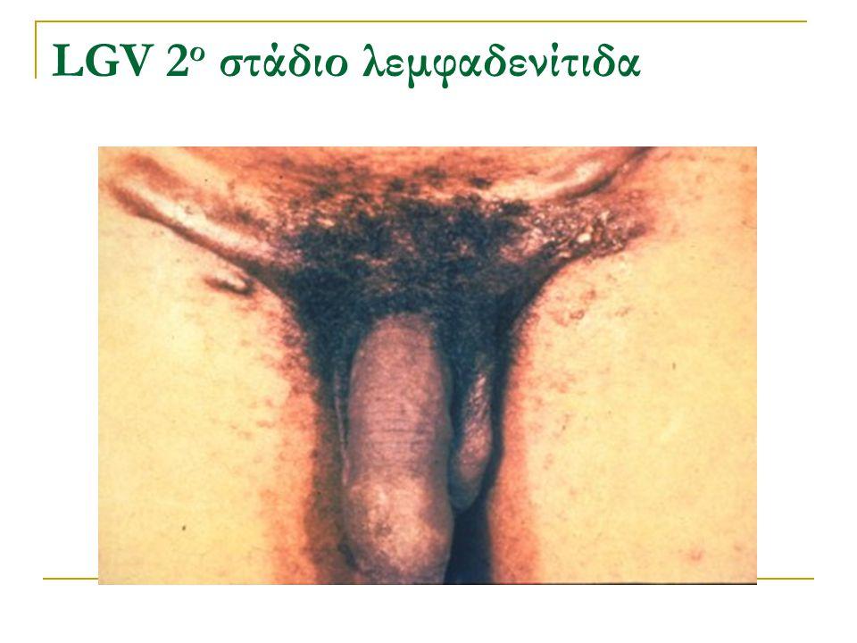 LGV 2 ο στάδιο λεμφαδενίτιδα