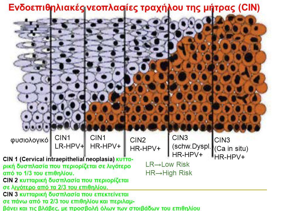 Ενδοεπιθηλιακές νεοπλασίες τραχήλου της μήτρας (CIN) φυσιολογικό CIN1 LR-HPV+ CIN1 ΗR-HPV+ CIN2 ΗR-HPV+ CIN3 (schw.Dyspl.) ΗR-HPV+ CIN3 (Ca in situ) Η