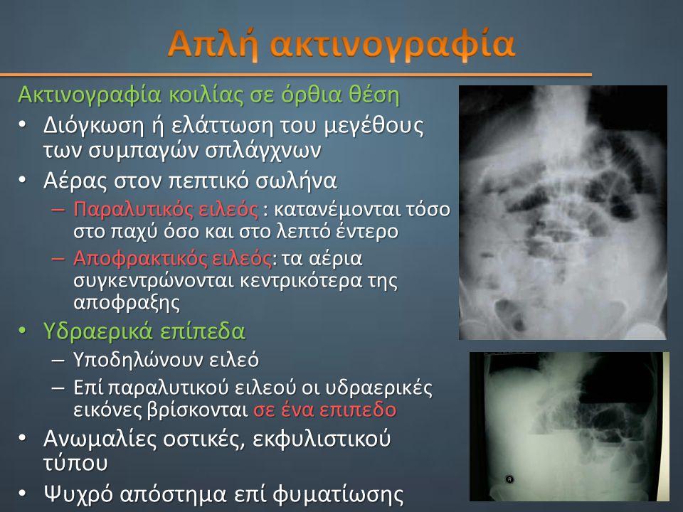 Ακτινογραφία κοιλίας σε όρθια θέση Διόγκωση ή ελάττωση του μεγέθους των συμπαγών σπλάγχνων Διόγκωση ή ελάττωση του μεγέθους των συμπαγών σπλάγχνων Αέρας στον πεπτικό σωλήνα Αέρας στον πεπτικό σωλήνα – Παραλυτικός ειλεός : κατανέμονται τόσο στο παχύ όσο και στο λεπτό έντερο – Αποφρακτικός ειλεός: τα αέρια συγκεντρώνονται κεντρικότερα της αποφραξης Υδραερικά επίπεδα Υδραερικά επίπεδα – Υποδηλώνουν ειλεό – Επί παραλυτικού ειλεού οι υδραερικές εικόνες βρίσκονται σε ένα επιπεδο Ανωμαλίες οστικές, εκφυλιστικού τύπου Ανωμαλίες οστικές, εκφυλιστικού τύπου Ψυχρό απόστημα επί φυματίωσης Ψυχρό απόστημα επί φυματίωσης