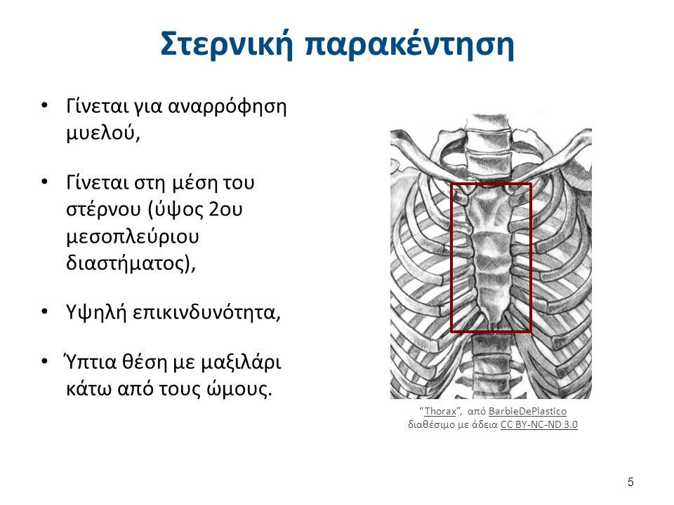 Στερνική παρακέντηση Γίνεται για αναρρόφηση μυελού, Γίνεται στη μέση του στέρνου (ύψος 2ου μεσοπλεύριου διαστήματος), Υψηλή επικινδυνότητα, Ύπτια θέση με μαξιλάρι κάτω από τους ώμους.