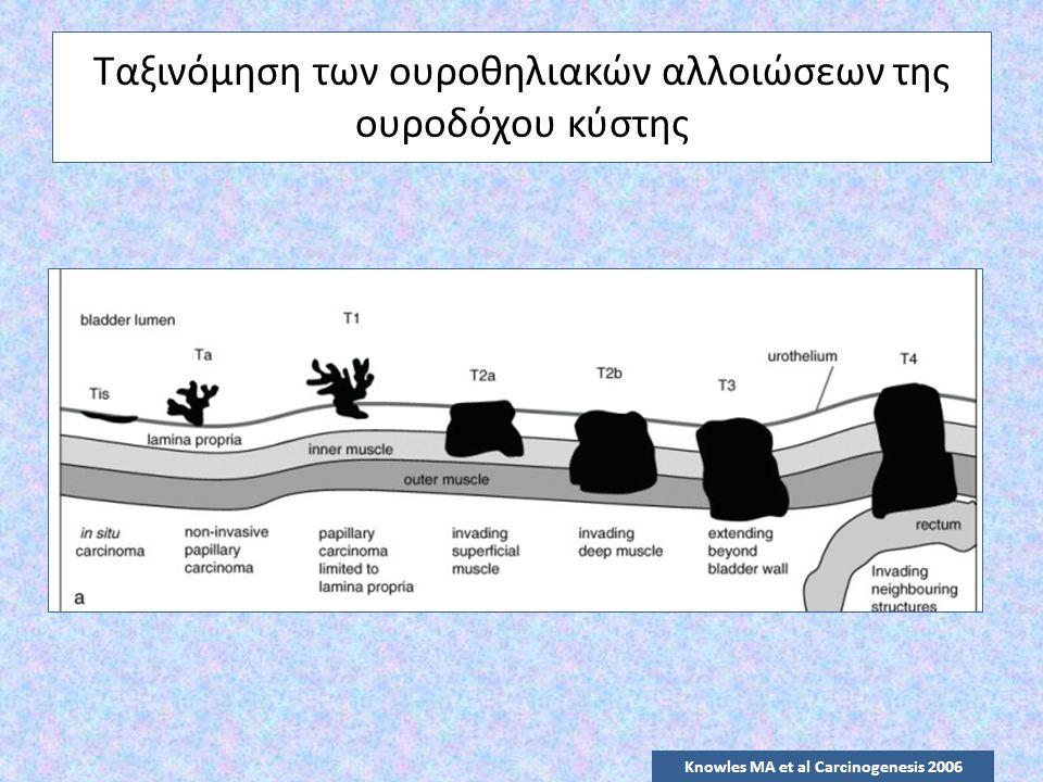 Ταξινόμηση των ουροθηλιακών αλλοιώσεων της ουροδόχου κύστης Knowles MA et al Carcinogenesis 2006