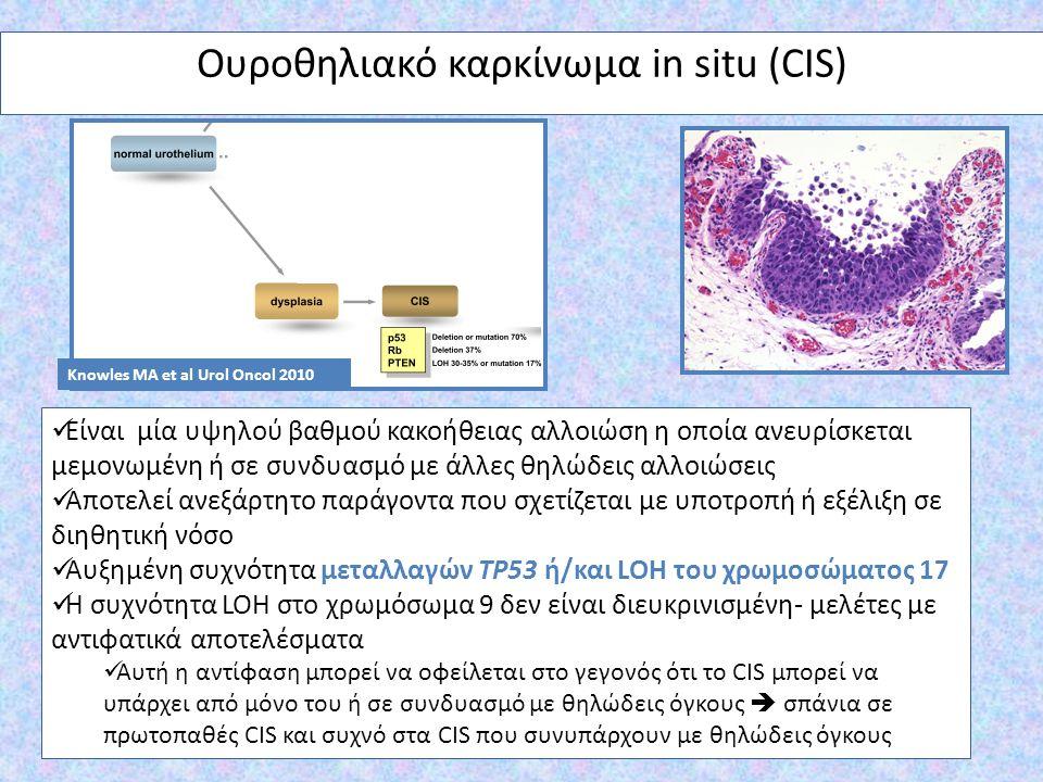 Ουροθηλιακό καρκίνωμα in situ (CIS) Είναι μία υψηλού βαθμού κακοήθειας αλλοιώση η οποία ανευρίσκεται μεμονωμένη ή σε συνδυασμό με άλλες θηλώδεις αλλοι
