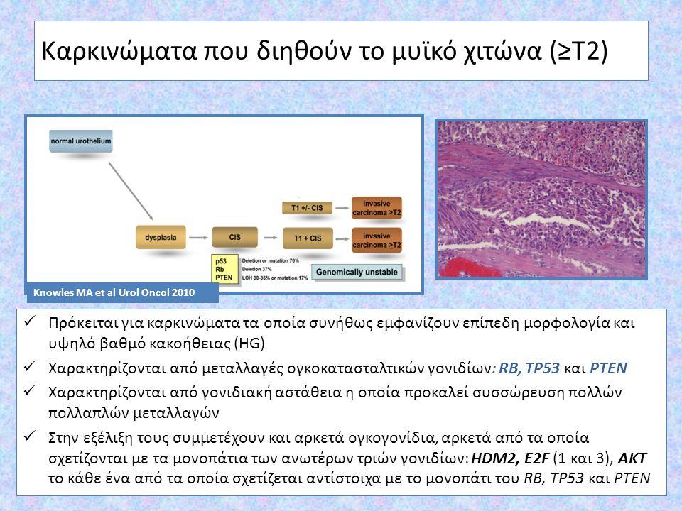 Καρκινώματα που διηθούν το μυϊκό χιτώνα (≥Τ2) Πρόκειται για καρκινώματα τα οποία συνήθως εμφανίζουν επίπεδη μορφολογία και υψηλό βαθμό κακοήθειας (HG)