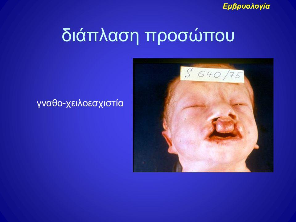 γναθο-χειλοεσχιστία διάπλαση προσώπου Εμβρυολογία