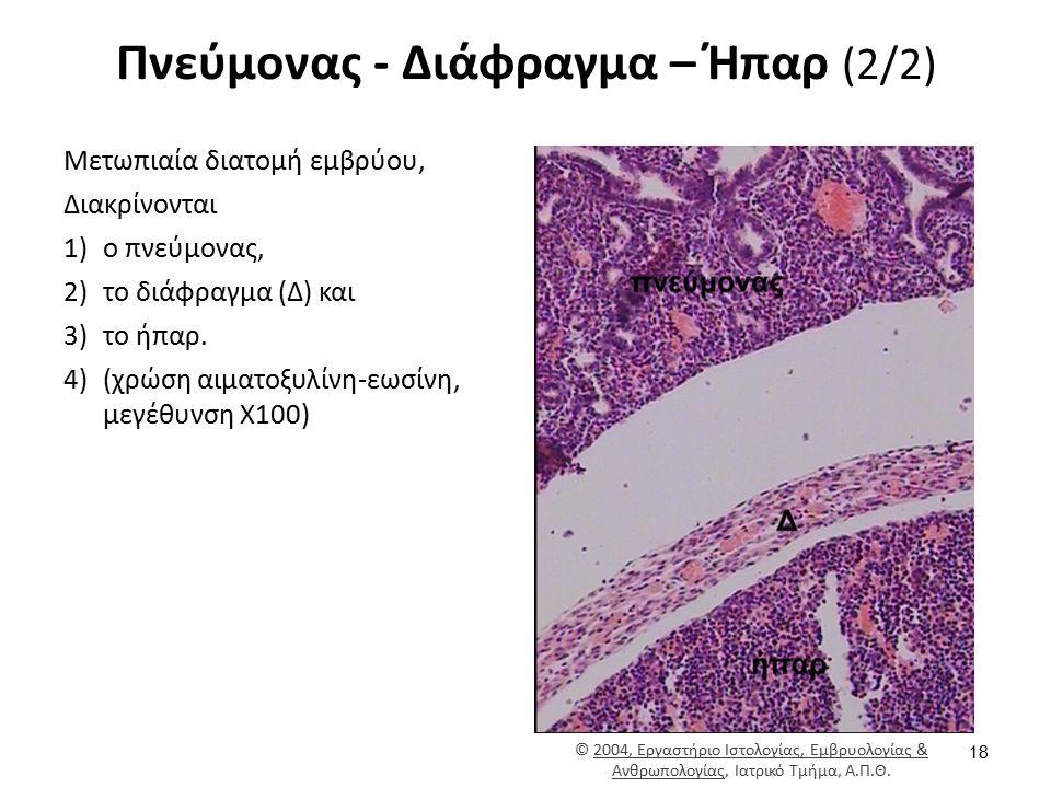 Πνεύμονας - Διάφραγμα – Ήπαρ (2/2) Μετωπιαία διατομή εμβρύου, Διακρίνονται 1)ο πνεύμονας, 2)το διάφραγμα (Δ) και 3)το ήπαρ. 4)(χρώση αιματοξυλίνη-εωσί
