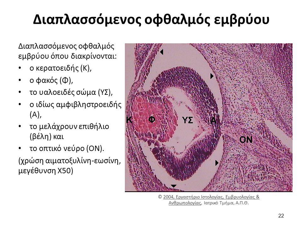 Διαπλασσόμενος οφθαλμός εμβρύου Διαπλασσόμενος οφθαλμός εμβρύου όπου διακρίνονται: ο κερατοειδής (Κ), ο φακός (Φ), το υαλοειδές σώμα (ΥΣ), ο ιδίως αμφ