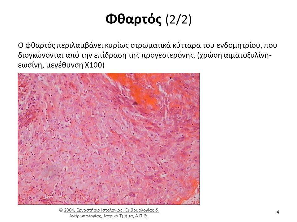 Φθαρτός (2/2) Ο φθαρτός περιλαμβάνει κυρίως στρωματικά κύτταρα του ενδομητρίου, που διογκώνονται από την επίδραση της προγεστερόνης. (χρώση αιματοξυλί