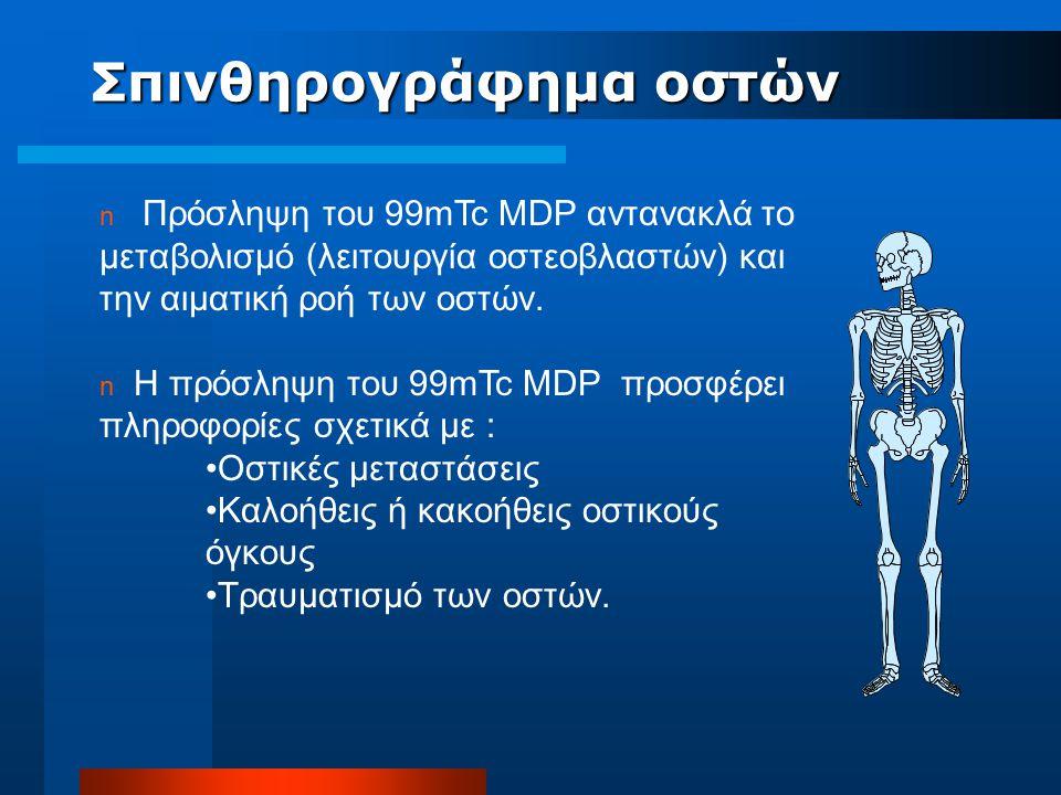 n Πρόσληψη του 99mTc MDP αντανακλά το μεταβολισμό (λειτουργία οστεοβλαστών) και την αιματική ροή των οστών. n Η πρόσληψη του 99mTc MDP προσφέρει πληρο