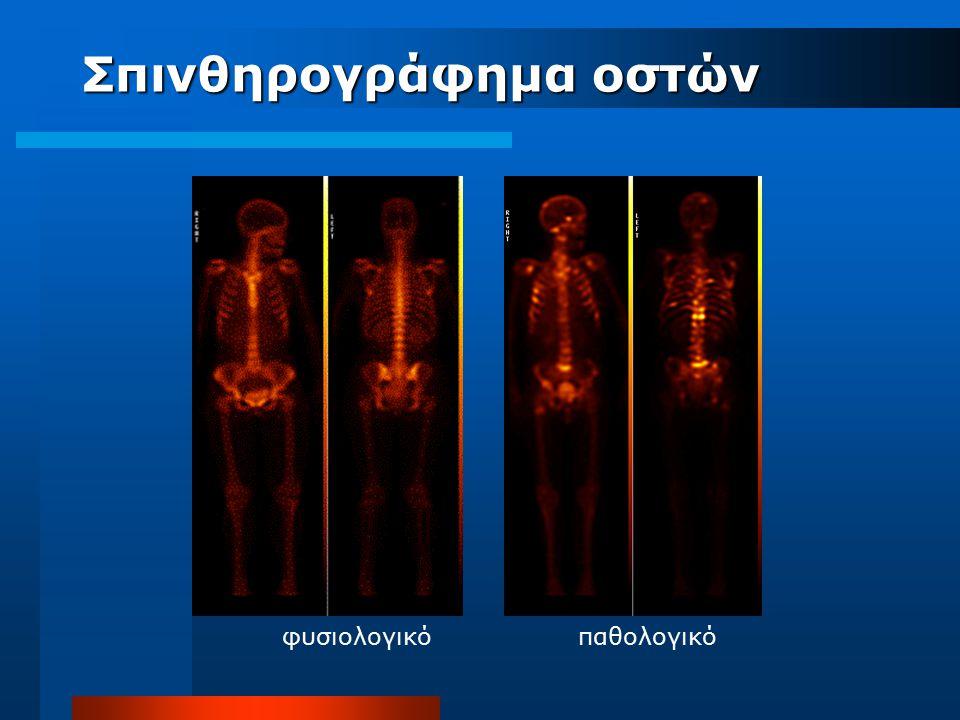 φυσιολογικόπαθολογικό Σπινθηρογράφημα οστών