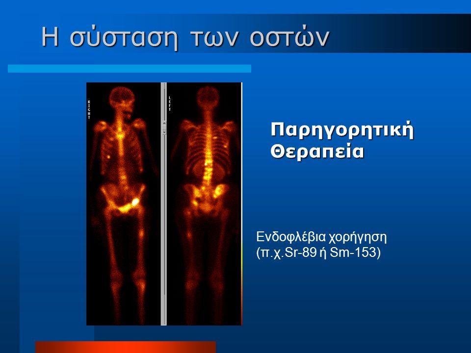 Παρηγορητική Θεραπεία Ενδοφλέβια χορήγηση (π.χ.Sr-89 ή Sm-153) Η σύσταση των οστών