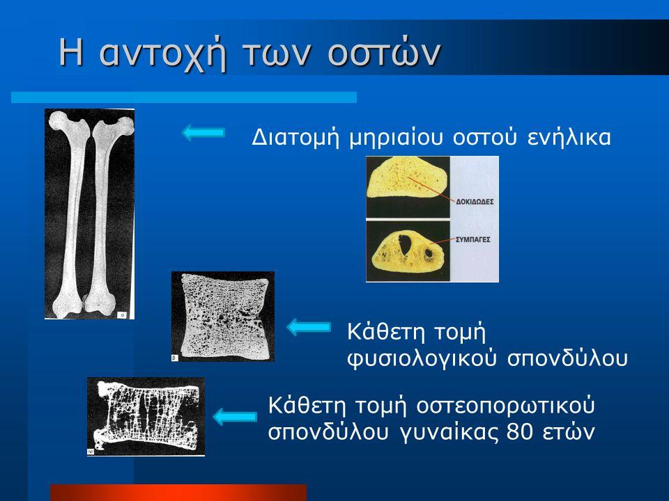Διατομή μηριαίου οστού ενήλικα Κάθετη τομή φυσιολογικού σπονδύλου Κάθετη τομή οστεοπορωτικού σπονδύλου γυναίκας 80 ετών