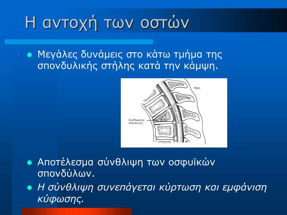 Μεγάλες δυνάμεις στο κάτω τμήμα της σπονδυλικής στήλης κατά την κάμψη. Αποτέλεσμα σύνθλιψη των οσφυϊκών σπονδύλων. Η σύνθλιψη συνεπάγεται κύρτωση και