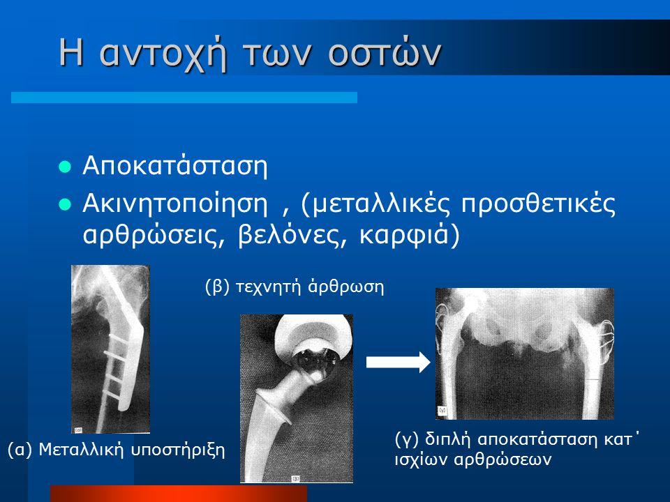 Η αντοχή των οστών Αποκατάσταση Ακινητοποίηση, (μεταλλικές προσθετικές αρθρώσεις, βελόνες, καρφιά) (α) Μεταλλική υποστήριξη (β) τεχνητή άρθρωση (γ) δι