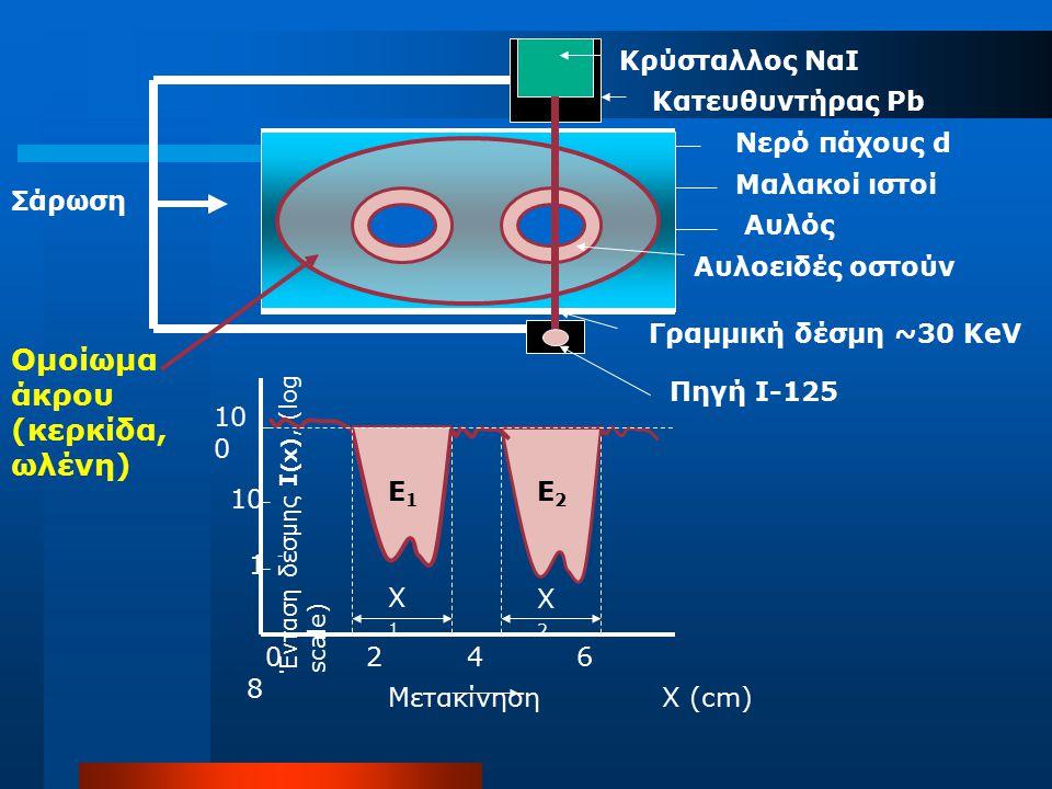 Κρύσταλλος ΝαΙ Κατευθυντήρας Pb Πηγή Ι-125 Νερό πάχους d Μαλακοί ιστοί Αυλοειδές οστούν Αυλός Γραμμική δέσμη ~30 KeV Ομοίωμα άκρου (κερκίδα, ωλένη) Σά