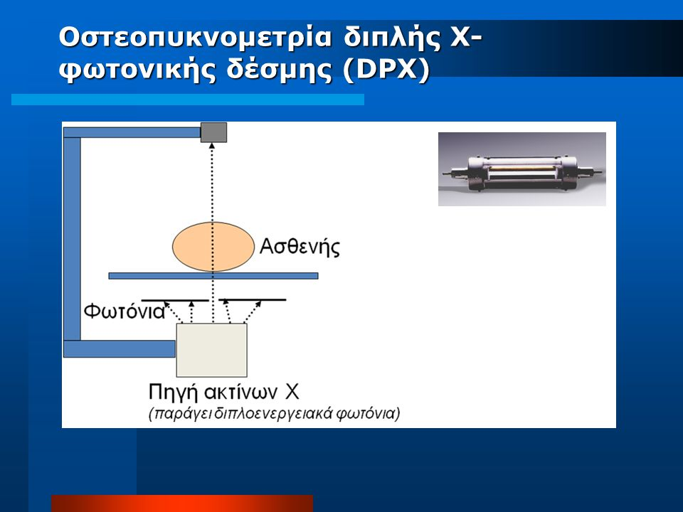 Οστεοπυκνομετρία διπλής Χ- φωτονικής δέσμης (DPX)