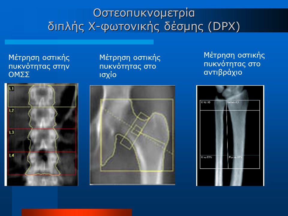 Οστεοπυκνομετρία διπλής Χ-φωτονικής δέσμης (DPX) Μέτρηση οστικής πυκνότητας στην ΟΜΣΣ Μέτρηση οστικής πυκνότητας στo ισχίο Μέτρηση οστικής πυκνότητας