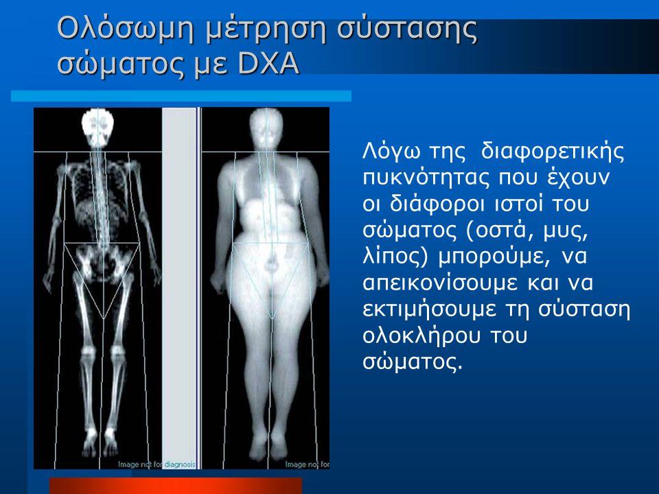 Ολόσωμη μέτρηση σύστασης σώματος με DXA Λόγω της διαφορετικής πυκνότητας που έχουν οι διάφοροι ιστοί του σώματος (οστά, μυς, λίπος) μπορούμε, να απεικ