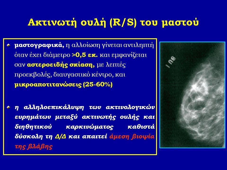 Ακτινωτή ουλή (R/S) του μαστού μαστογραφικά, η αλλοίωση γίνεται αντιληπτή όταν έχει διάμετρο >0,5 εκ. και εμφανίζεται σαν αστεροειδής σκίαση, με λεπτέ