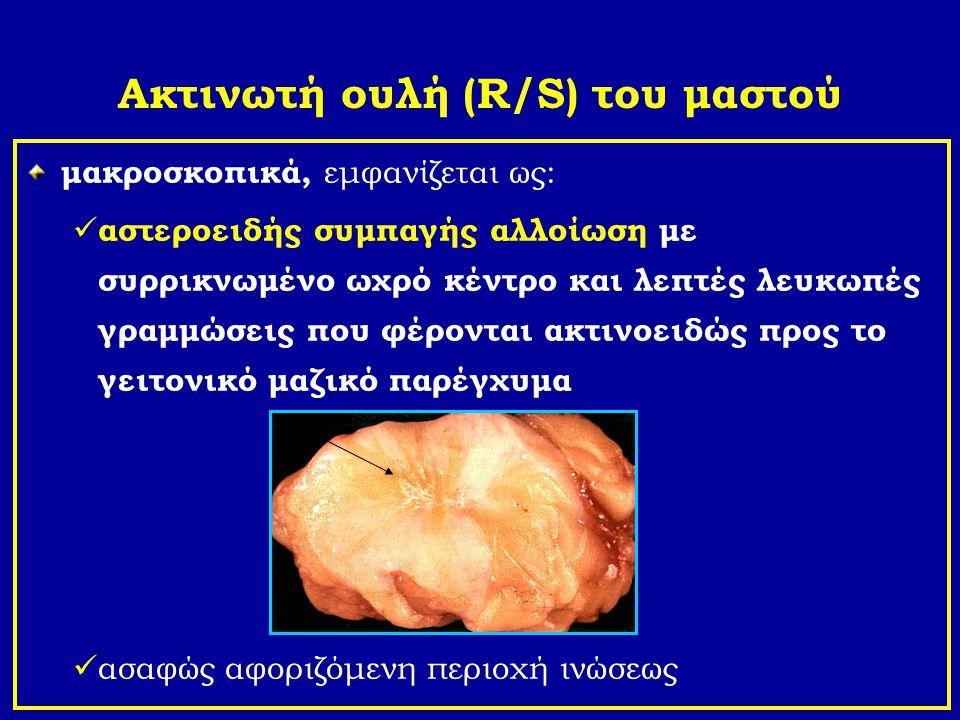Ακτινωτή ουλή (R/S) του μαστού μακροσκοπικά, εμφανίζεται ως: αστεροειδής συμπαγής αλλοίωση με συρρικνωμένο ωχρό κέντρο και λεπτές λευκωπές γραμμώσεις