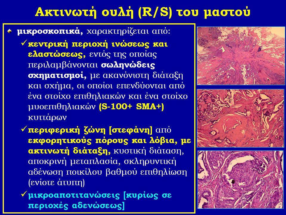 Ακτινωτή ουλή (R/S) του μαστού μικροσκοπικά, χαρακτηρίζεται από: κεντρική περιοχή ινώσεως και ελαστώσεως, εντός της οποίας περιλαμβάνονται σωληνώδεις