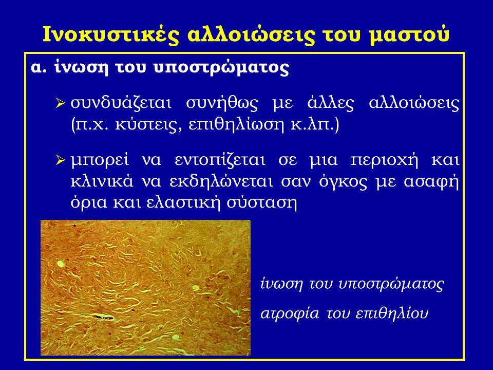 Εκτασία των πόρων πλασματοκυτταρική ή αποφρακτική μαστίτις μικροσκοπικά παρατηρούνται: διατεταμένοι εκφορητικοί πόροι με - ατροφικό, αποπλατυσμένο ή κατεστραμμένο επιθήλιο - ενδοαυλικό ηωσινόφιλο κοκκιώδες ή άμορφο πρωτεϊνικό υλικό - και αφρώδη ιστιοκύτταρα φλεγμονώδεις διηθήσεις του τοιχώματος και του γύρω μαζικού αδένος από λεμφοκύτταρα, πλασματοκύτταρα, πολυμορφοπύρηνα και αφρώδη ιστιοκύτταρα